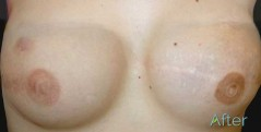 areola tattoo -after - JuvEssentials