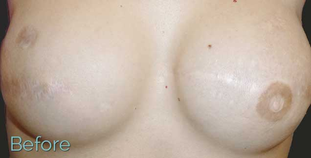 areola tattoo - before - JuvEssentials