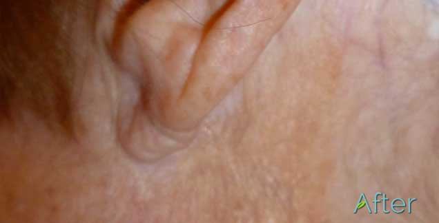 JuvEssentials - After pic of corrective skin discoloration with permanet cosmetic tattoing