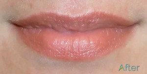 Lip Correctibve Cosmetic Tattoo