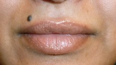 JuvEssentials Permanent cosmetic lip color tattoo after photo