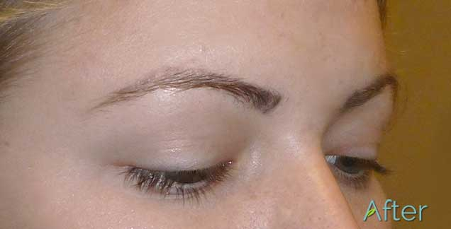 12_Eyebrow_brow-removal-After