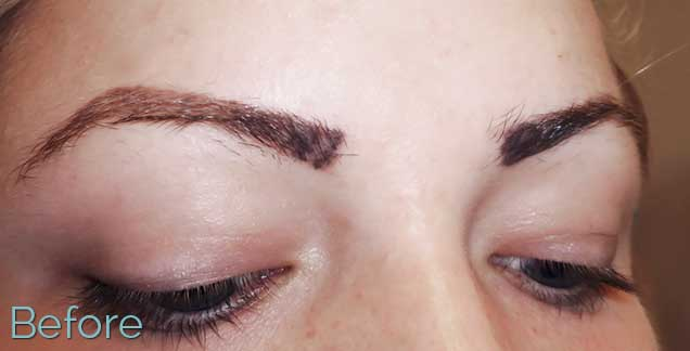 12_Eyebrow_brow-removal-Before