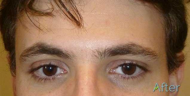 Male Eyebrows After Juvessentials