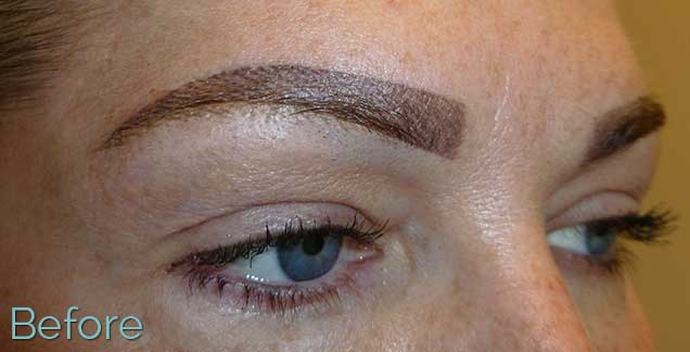 1_blocky-brow-tattoo-removal-Before