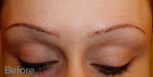 trichotillomania affecting eyebrows