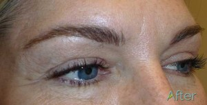 New eyebrow tattoos after non-laser eyebrow tattoo removal