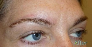 Skin fully healed after non-laser eyebrow tattoo removal