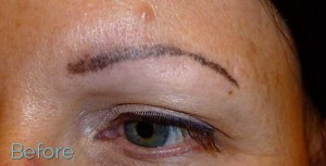 19_JuvEssentials_BrowTattooRemoval_BEFORE