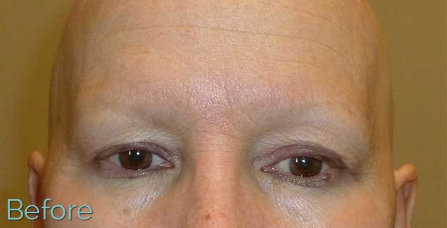 2_alopecia-universalis-no-eyebrows