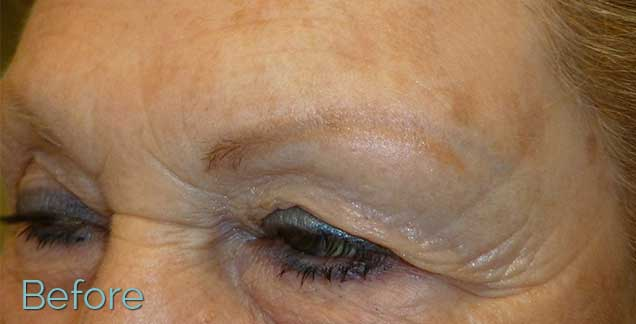 3-JuvEssentials_Blonde-Brow_BEFORE