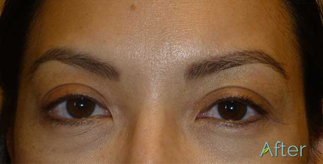 JuvEssentials_BeautifulAsianBrows_AFTER