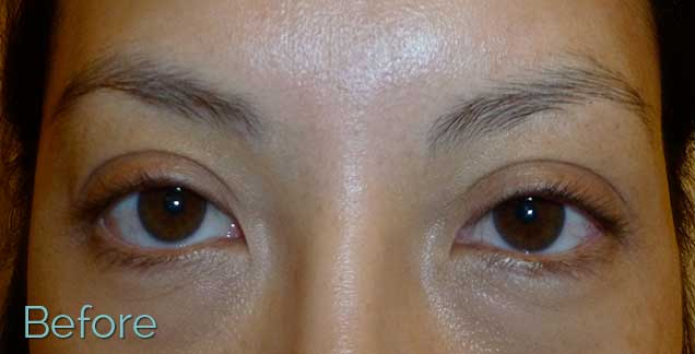 JuvEssentials_BeautifulAsianBrows_BEFORE