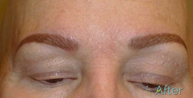 Do you offer eyebrow tattoo removal?