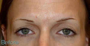Eyebrow prior to brow tattoo