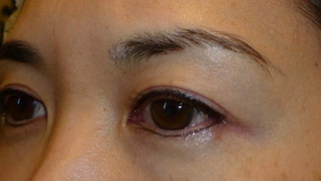 Eyeliner tattoo immediately after procedure