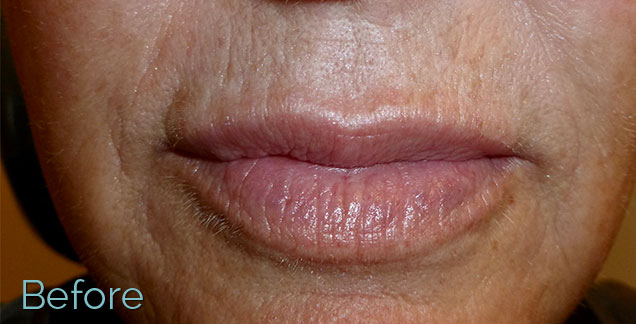 Before-Microneedling 3