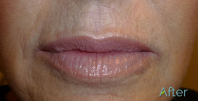 After-Microneedling 3